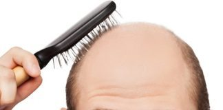 prevent hairloss